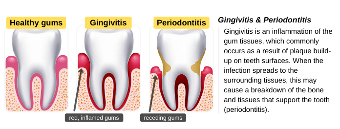 What are Gingivitis & Periodontitis? Can Both be Reversed?