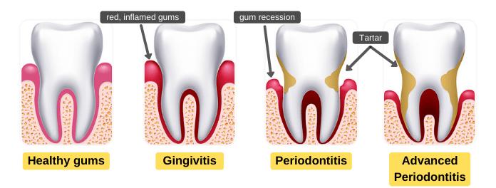 Gingivitis and periodontitis during pregnancy