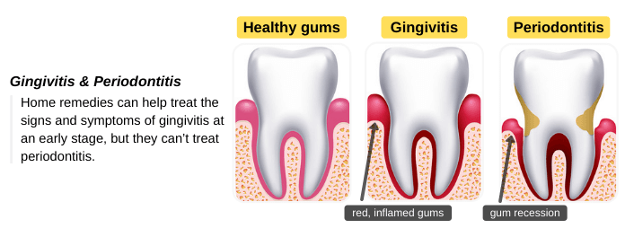 Home remedies for gingivitis and periodontitis