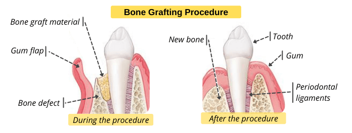 Bone grafting for the treatment of periodontitis