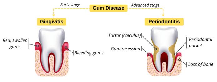 Differences between Gingivitis vs Periodontitis