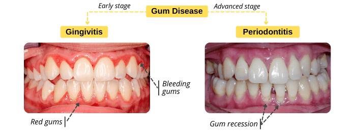 Pictures of gingivitis vs periodontitis