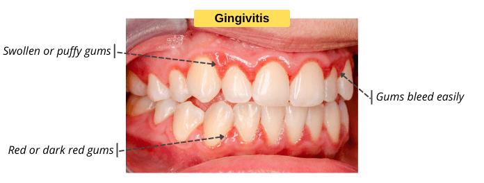 Signs & Symptoms of Gingivitis