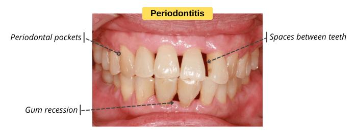 Signs & Symptoms of Periodontitis