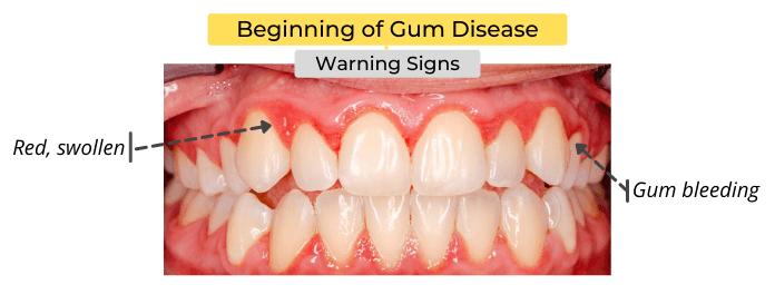 Beginning of Gum Disease - Warning Signs