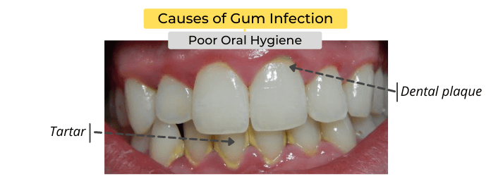 Causes of gum infection include poor oral hygiene
