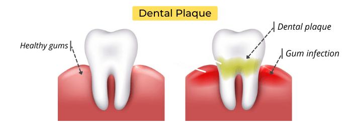 Dental plaque & gum infection