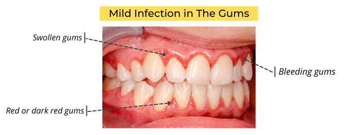 Mild Bacterial Infection in The Gums