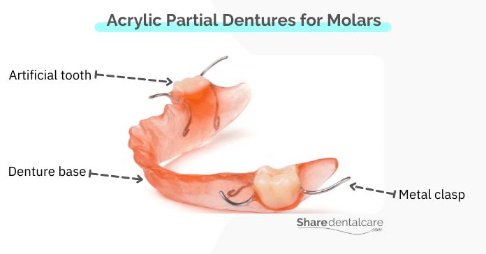 Acrylic Partial Dentures for Molars