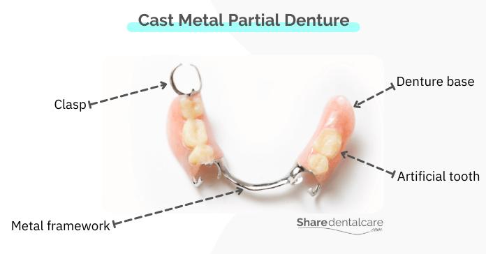 Cast Metal Partial Dentures for Missing Molars