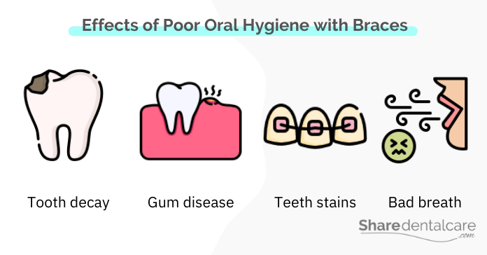 Effects of Poor Oral Hygiene with Braces on Your Oral Health