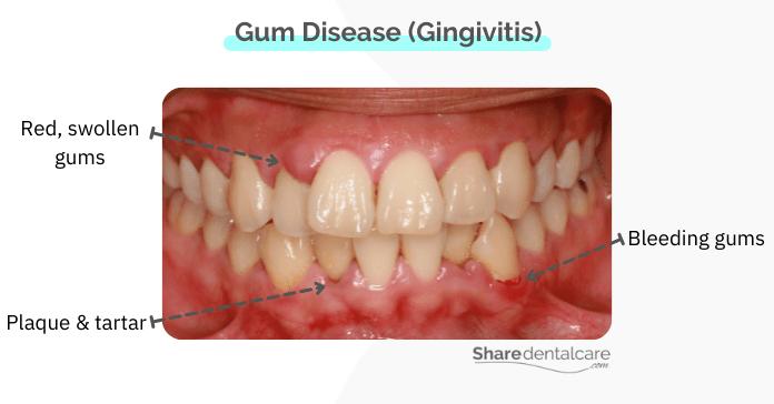 Plaque bacteria produce acids that irritate the gums, causing the gum disease in humans