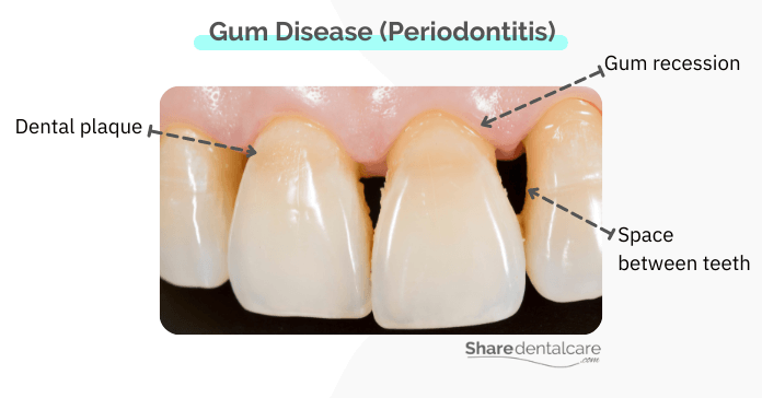 Periodontitis may lead to the loss of humans teeth