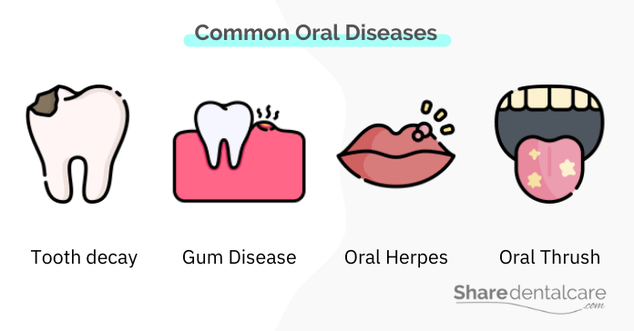 Common diseases of teeth and gums