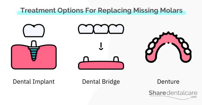 Treatment Options For Replacing Missing Molars