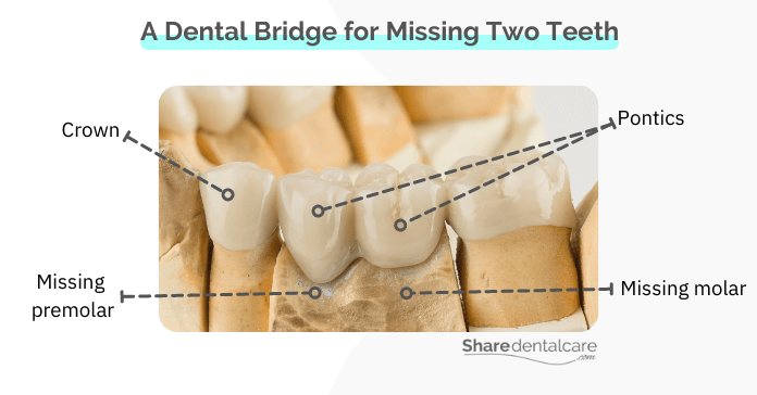 A Bridge for Two Missing Teeth