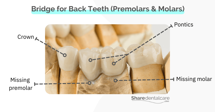 Traditional dental bridge for missing back teeth