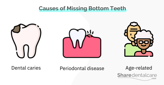 Causes of Missing Bottom Front Teeth