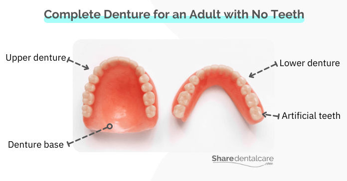 Complete denture for an adult with no teeth