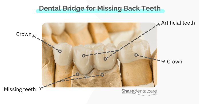 A dental bridge consists of two crowns and artificial teeth in between