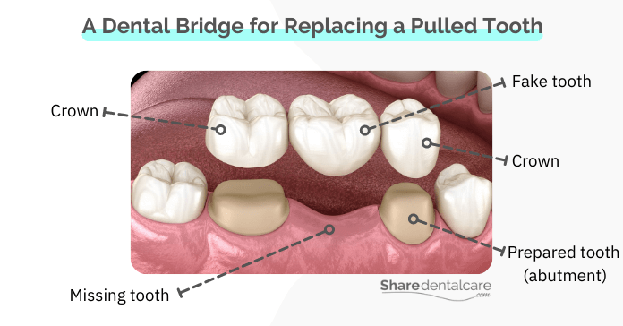 A dental bridge for a missing tooth