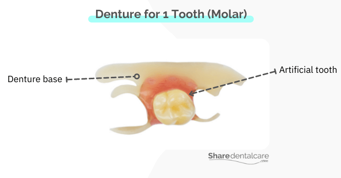 Partial denture for replacing 1 missing tooth (single molar).