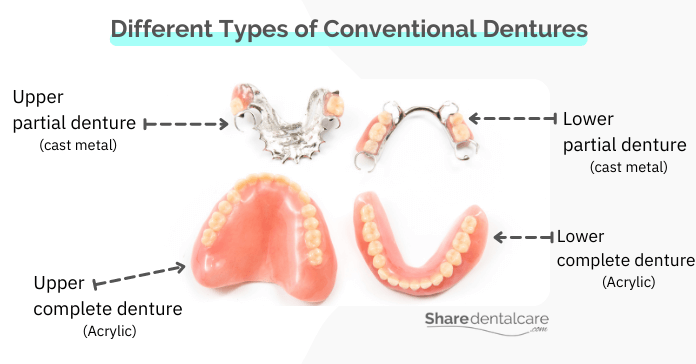 Different types of conventional dentures for missing teeth (removable fake teeth)