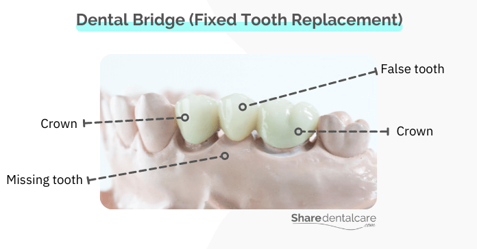A fixed dental bridge for replacing a missing tooth