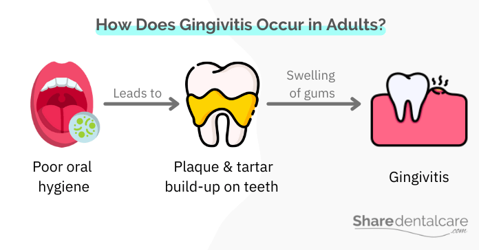 How Does Gingivitis Occur in Adults