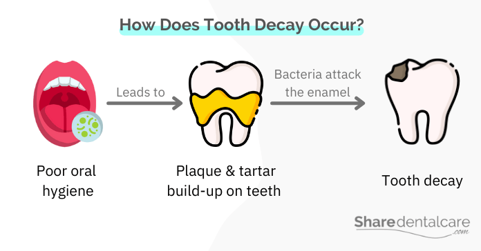 Tooth decay occurs due to poor oral hygiene and plaque build-up
