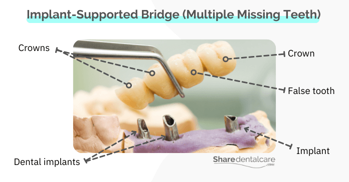 an implant-supported bridge for replacing multiple missing teeth