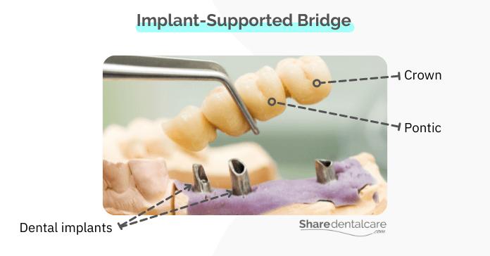 Implant-supported bridge for missing premolars & molars