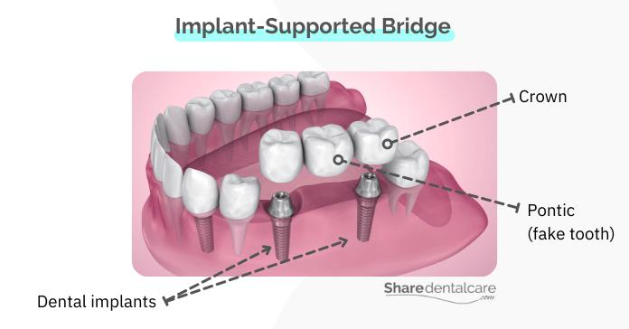 Implant-supported dental bridge (fixed fake teeth)
