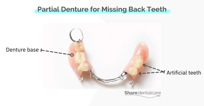 a partial denture consists of an acrylic base with artificial teeth