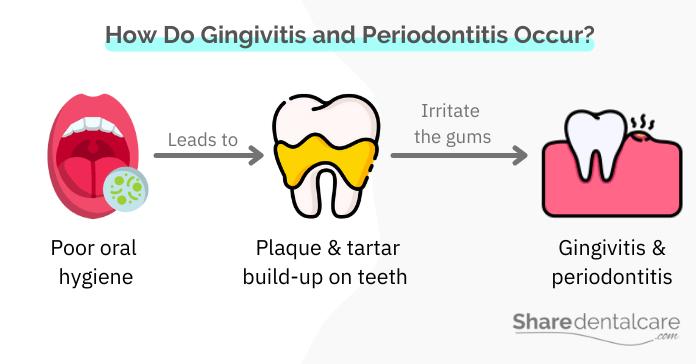 Plaque bacteria cause gingivitis and periodontitis
