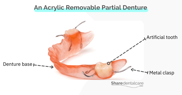 Removable partial dentures - an affordable treatment option