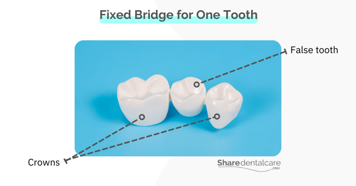Removable or fixed bridge for one missing tooth