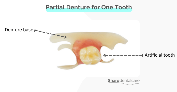 Removable partial denture for one missing tooth