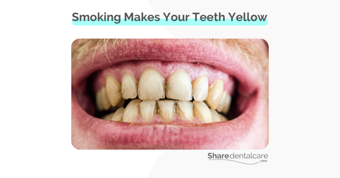 Smoking does make your teeth yellow