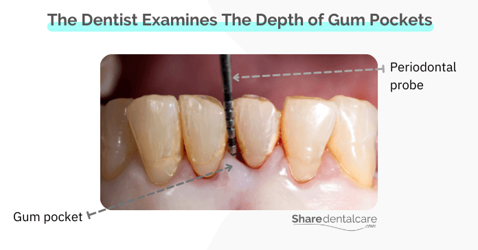 The Dentist Examines The Depth of Gum Pockets