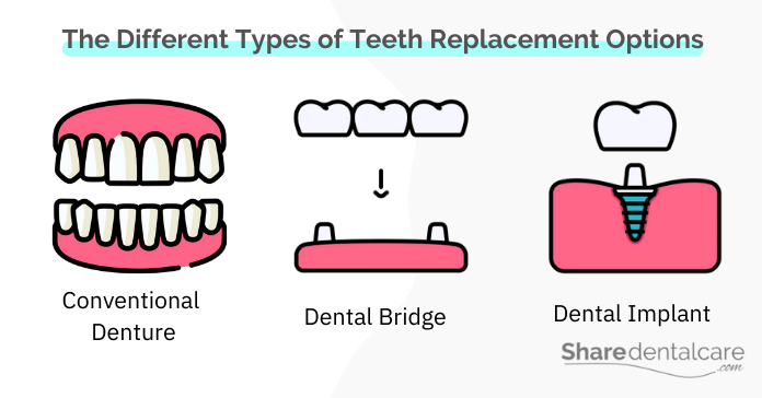 The Different Types of Teeth Replacement Options