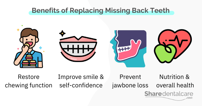 Tooth replacement benefits for missing back teeth