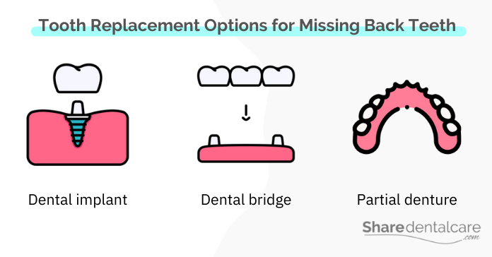 Tooth replacement options for missing back teeth