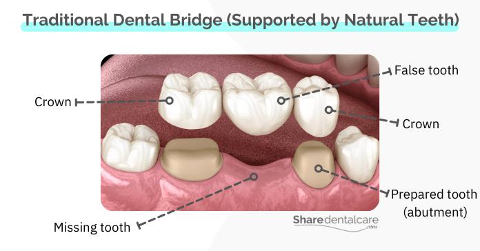 Traditional bridges – the common between bridge types in dentistry