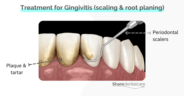 Treatment for Gingivitis in Adults (scaling and root planing)