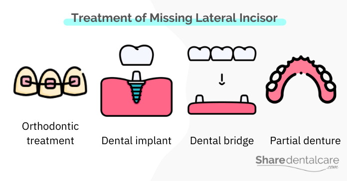 ment of Missing Lateral Incisors