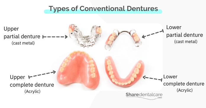 Types of conventional dentures: complete and partial.