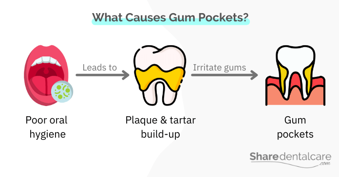 What Causes Gum Pockets