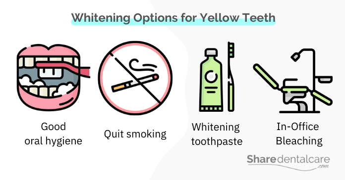 Whitening Options for Yellow Teeth