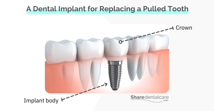 A dental implant for replacing a pulled tooth